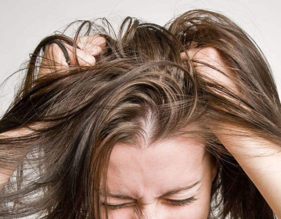 راه های درمان شوره سر چیست