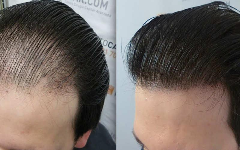 همه آنچه قبل از کاشت و ترمیم مو باید بدانید - موی وان