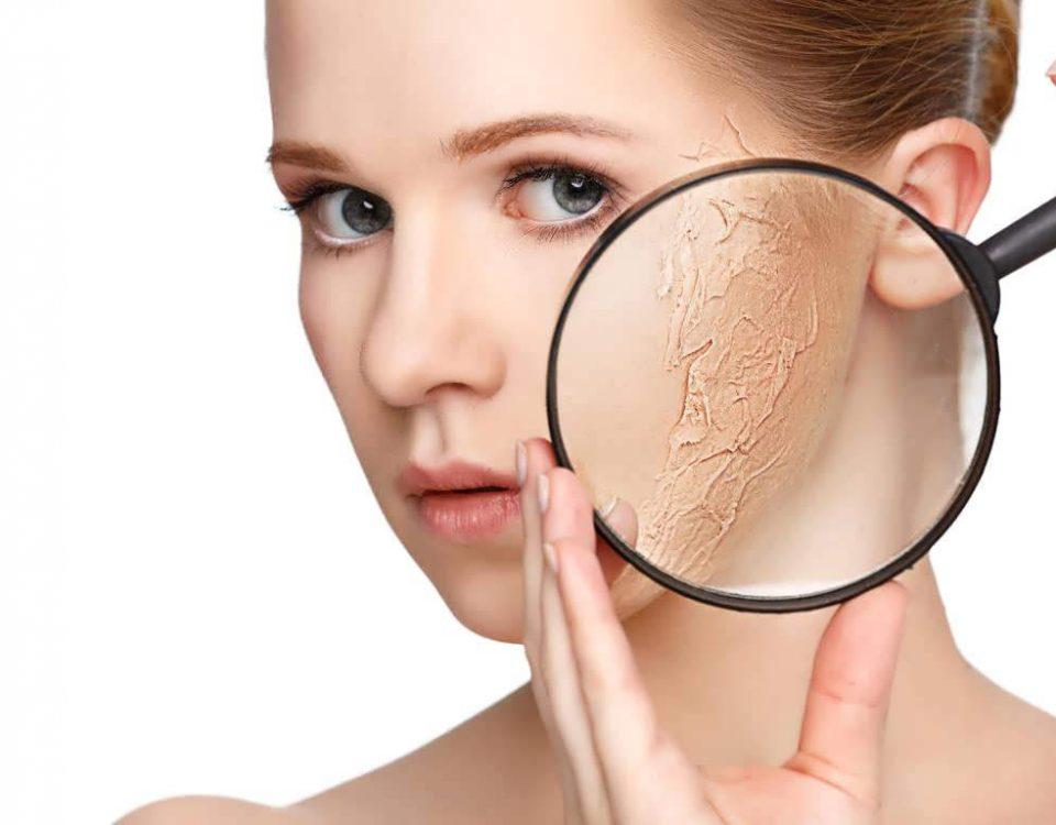 علت خشکی پوست چیست