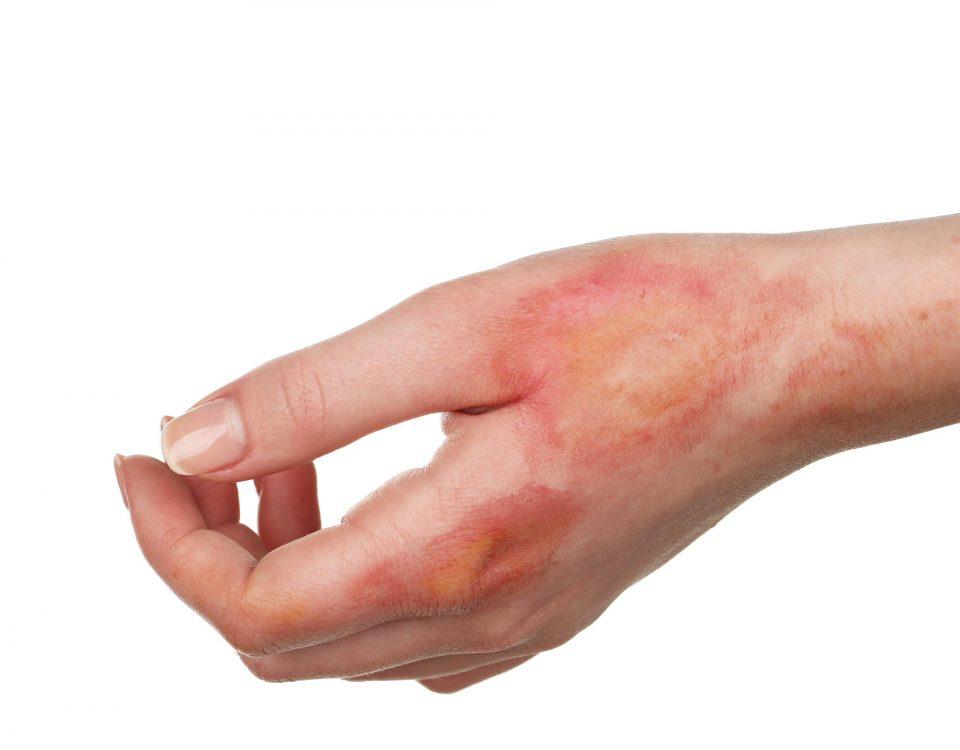سوختگی پوست و درمان آن