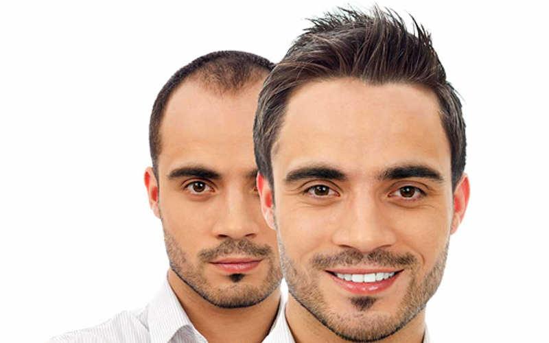 با آنچه که کاشت مو گفته می شود؛ بیشتر آشنا شویم – موی وان