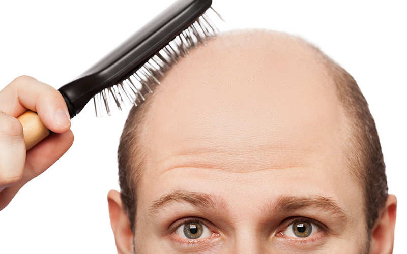 نکاتی که قبل از ترمیم و کاشت مو باید بدانیم - موی وان