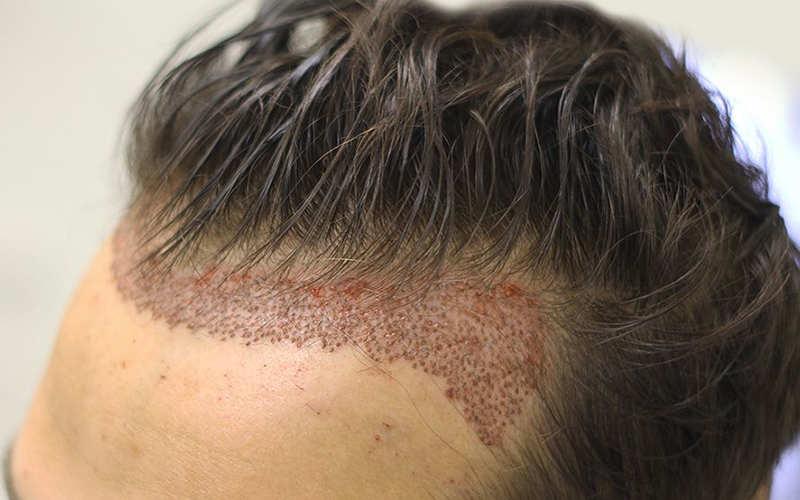 مزایا و معایب کاشت به روش FIT را بدانیم – موی وان