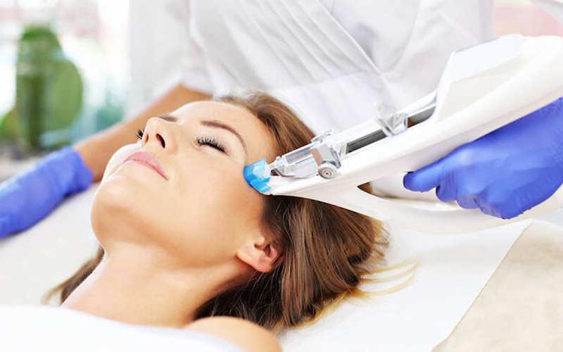 روش مزوتراپی مو چیست و چگونه انجام می گیرد؟ - موی وان