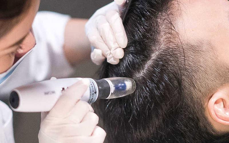 مزوتراپی مو چگونه انجام می شود؟ - موی وان