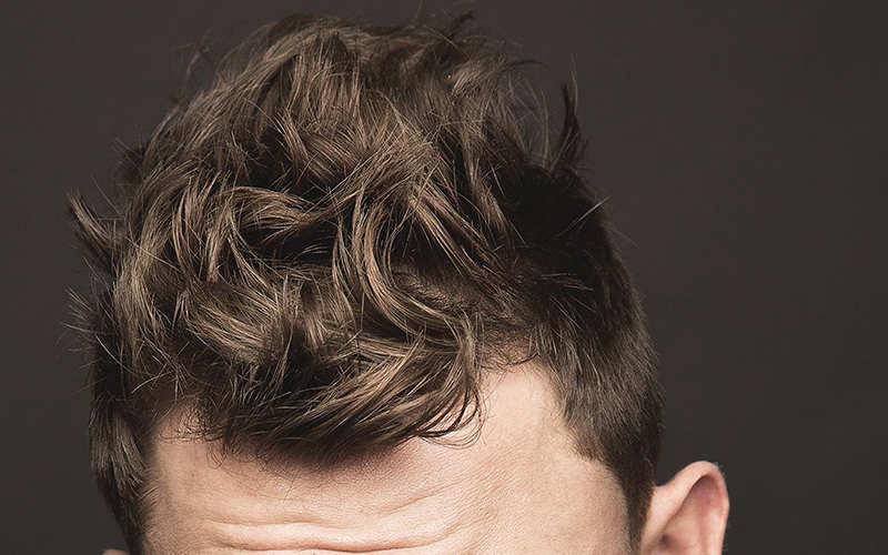 تفاوت پروتز مو و کلاه گیس در چیست؟ - موی وان