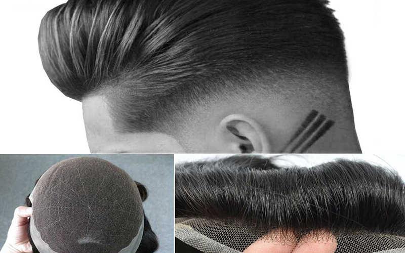معایب ترمیم مو در مقایسه با انواع روش های کاشت مو - موی وان